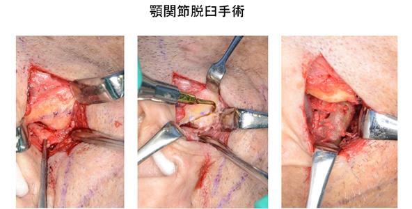 顎関節脱臼手術